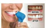 اعلان عن  جهاز تبييض الأسنان