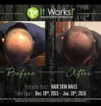 It Works!  Hair Skin & Nails   بي مكوناتها الطبيعيه  100℅  و   فيها كم