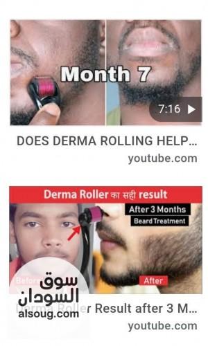 جهاز dermaroller لتكثيف وانبات شعر - صورة رقم